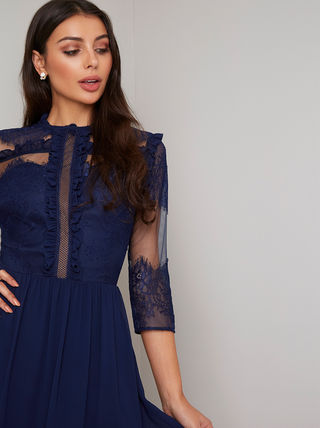 Medium Lace Dresses