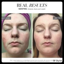 Rodan + Fields Pores Upliftings Acne Unisex Hialuron Face Wash