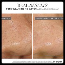 Rodan + Fields Pores Upliftings Whiteness Unisex Beauty